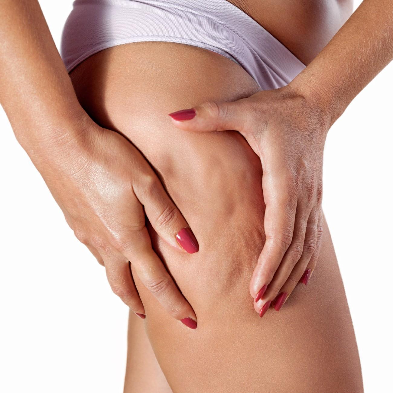 Dita femminili premono la pelle di una coscia evidenziando la cellulite