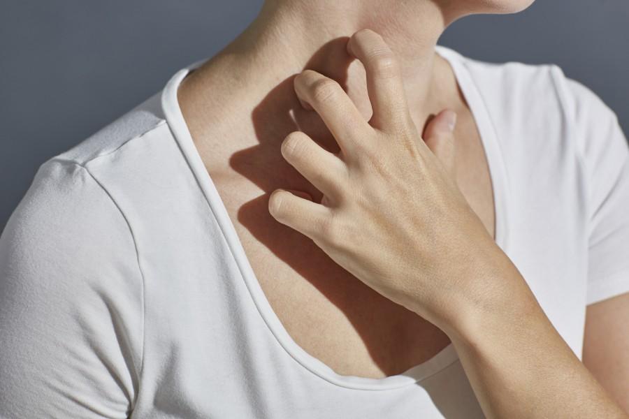 donna con orticaria, sintomo di intolleranze alimentari