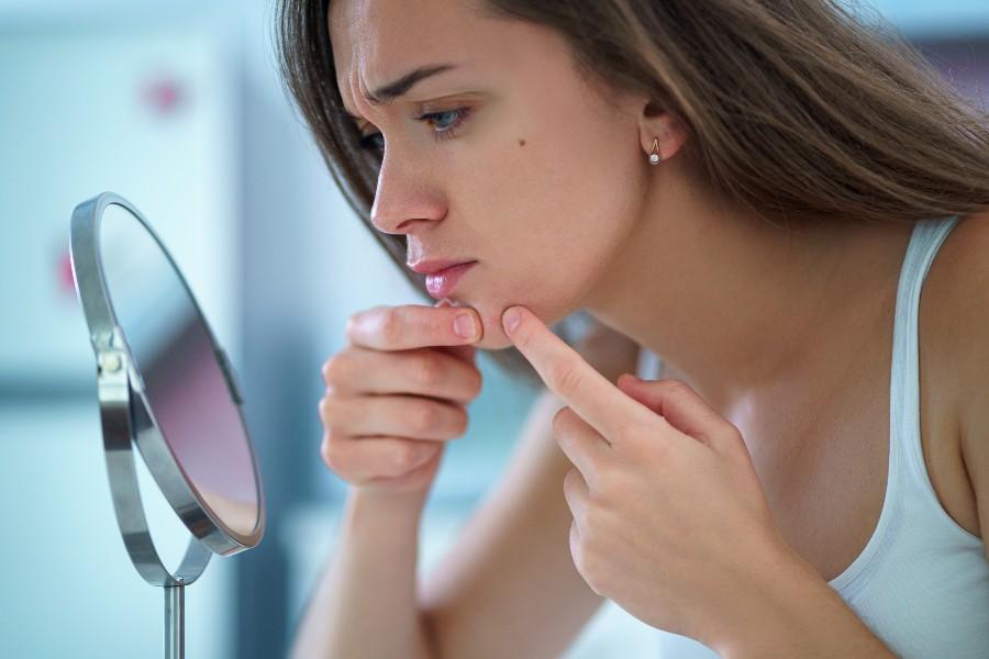 Ciclo mestruale e fertilità: aumento delle impurità della pelle