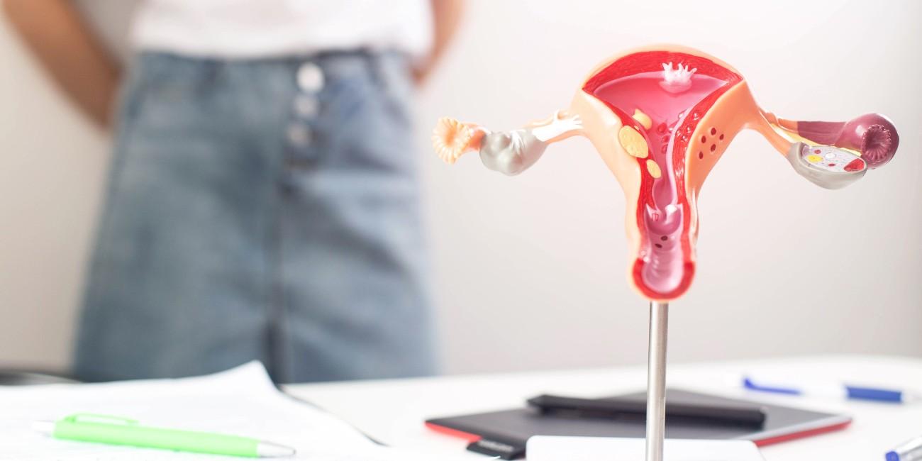 Apparato riproduttivo femminile - Sindrome da ovaio policistico